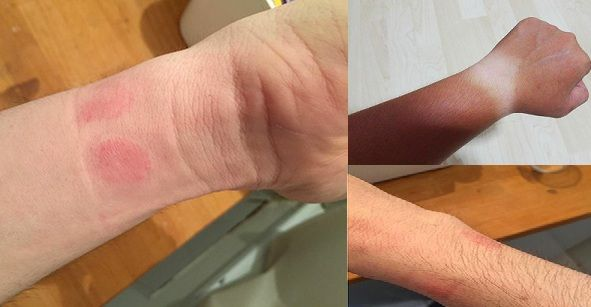 tay bị dị ứng vì đeo đồng hồ kém chất lượng